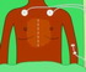 Kalp Nakli Ameliyatı